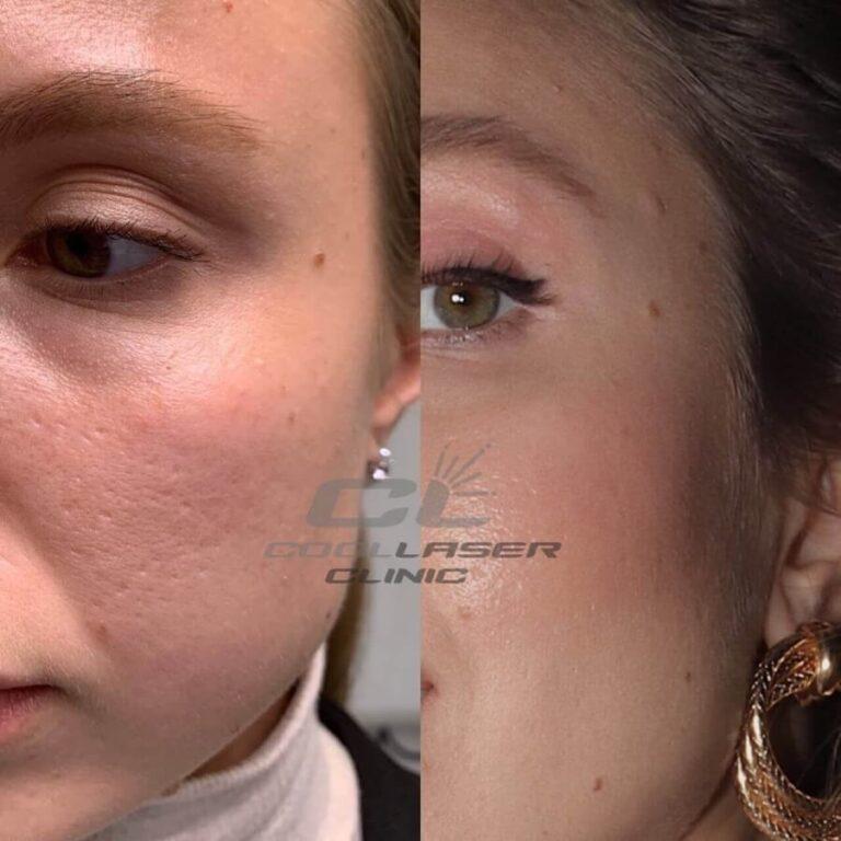 Лазерная шлифовка До и после фото Ирина Любченко