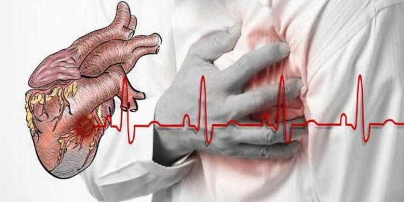 ИнфарктИнфаркт миокарда