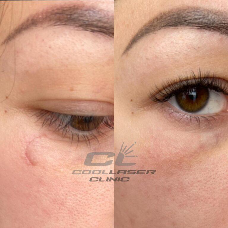 Фото до и после лазерного удаления шрама на щеке