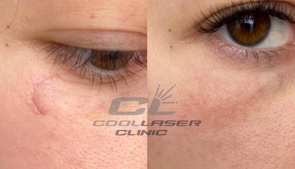 Убрать шрам с лица за 3 процедуры. Фото