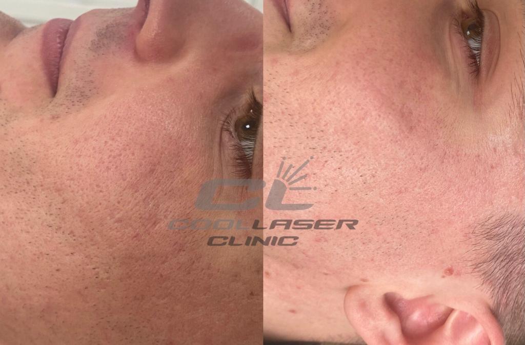 До и после удаления шрамов постакне