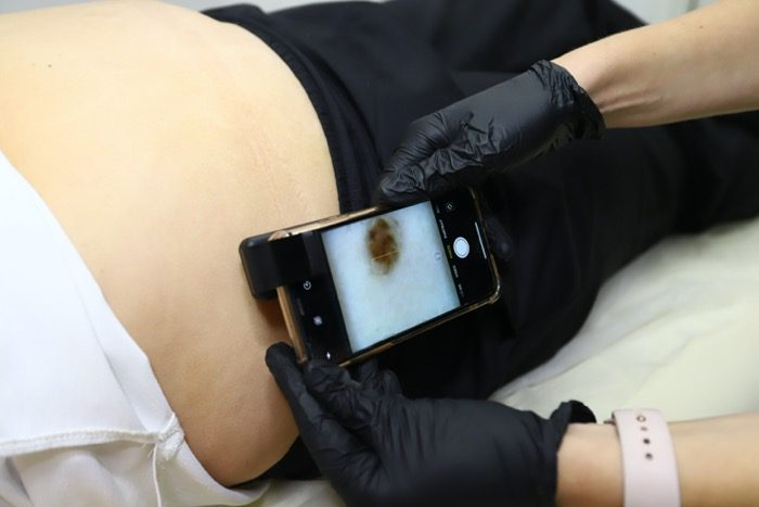фото дерматоскопии