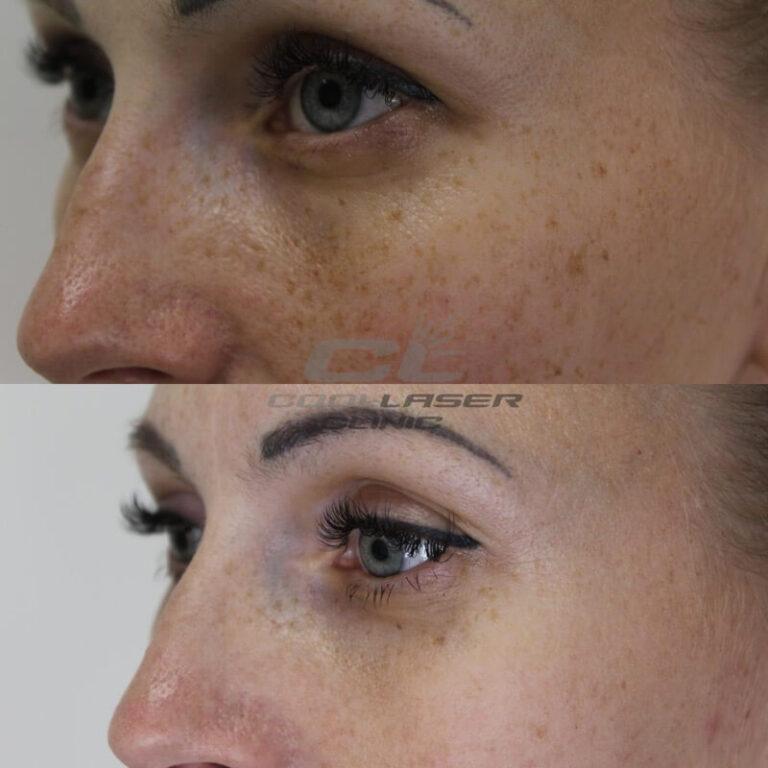 Пилинг фото до и после