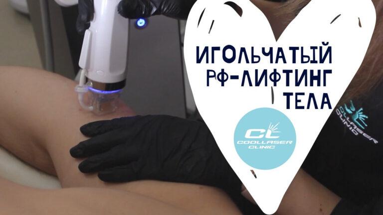 Игольчатый РФ тела