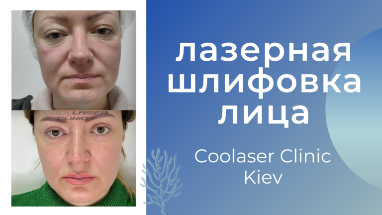 Лазерная шлифовка Coolaser CO2