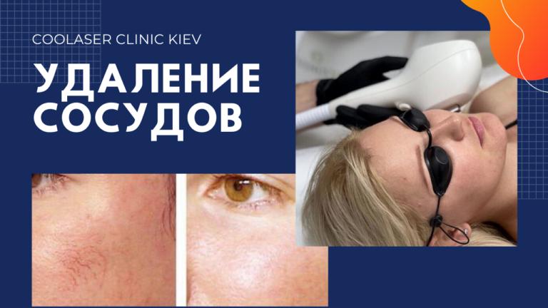 Удаление сосудов на лице. Фото