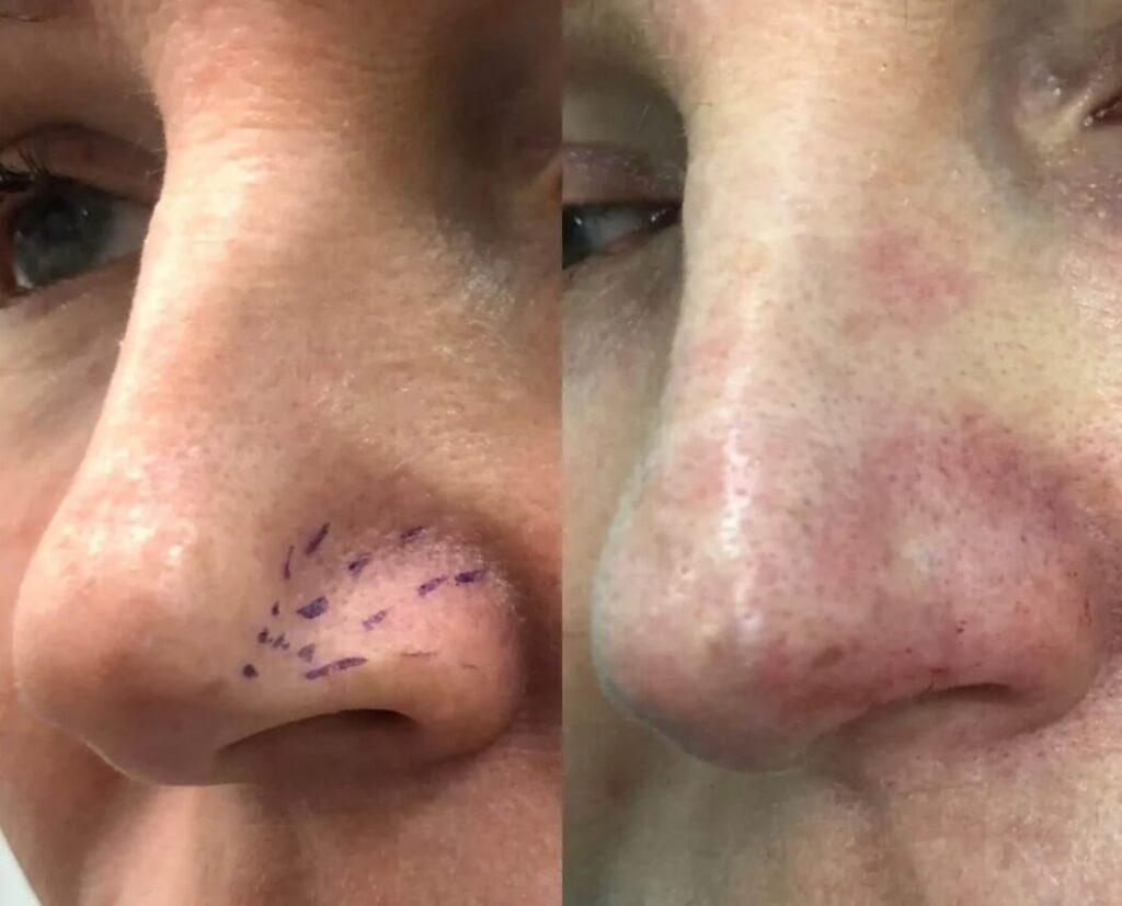 Дренажная мезотерапия носа